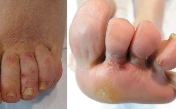 Los linfomas también pueden aparecer en la piel